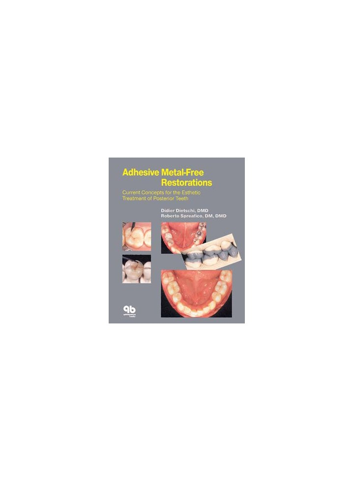 Adhesive Metal-Free Restorations: Current Concepts for the Esthetic  Treatment