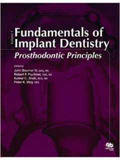 Fundamentals of Implant Dentistry.  Volume 1: Prosthodontic Principles