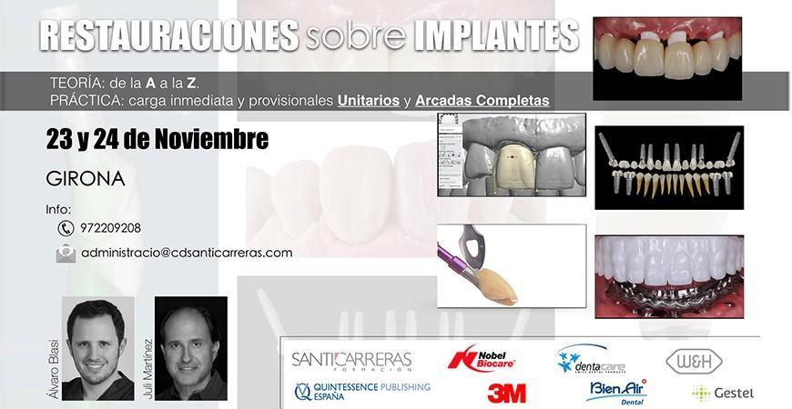 Restauraciones sobre implantes
