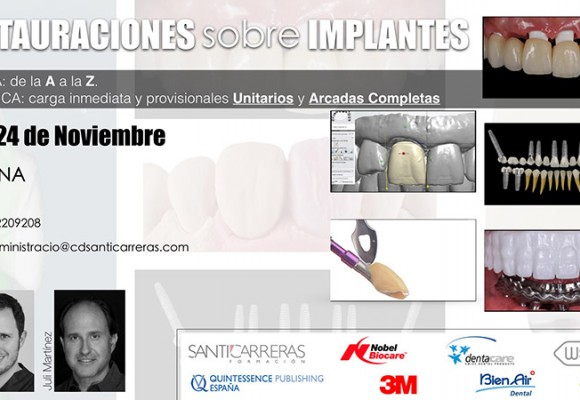 Restauraciones sobre implantes