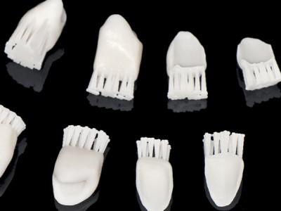 Diagnóstico estético avanzado con mock-ups CAD/CAM