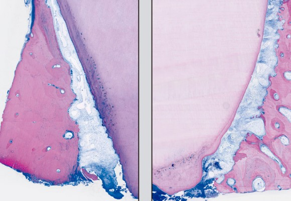 Evaluaciones clínicas e histológicas humanas del tratamiento periodontal asistido por láser