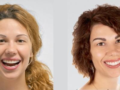 Flujo de trabajo digital para la restauración de una sonrisa