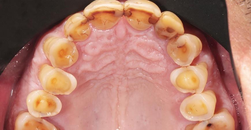¿Qué detalles de la adhesión son de interés en los casos de desgaste dentario?