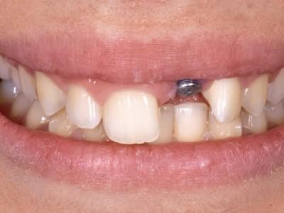 Enfoque restaurador mucogingival para tratar el fracaso del implante en el área estética