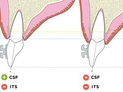 Extrusión ortodóncica: pautas para la práctica clínica contemporánea